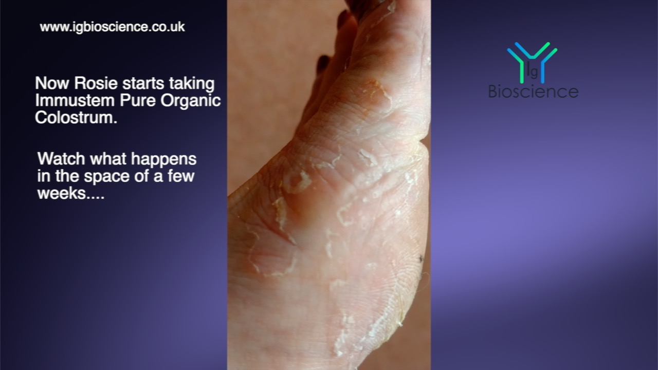 STUNNING RESULTS WITH ECZEMA- A VIDEO DIARY